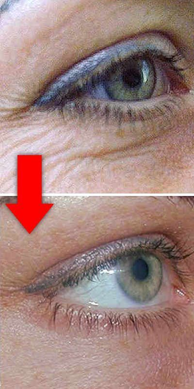 самый лучшей крем от морщин вокруг глаз