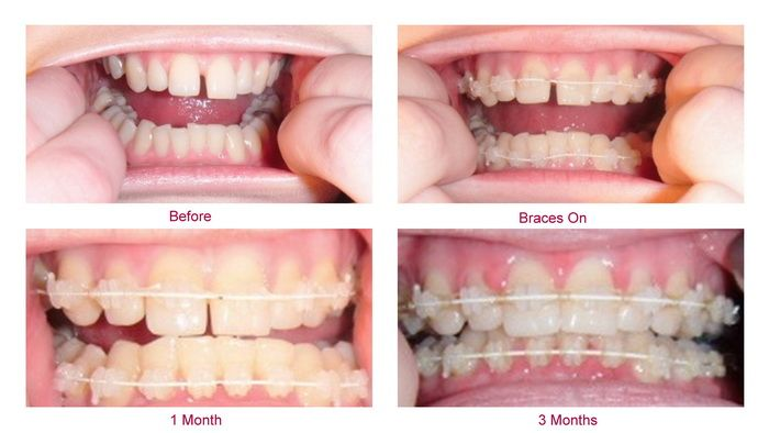 Teeth Braces Before and After | Braces | Pinterest