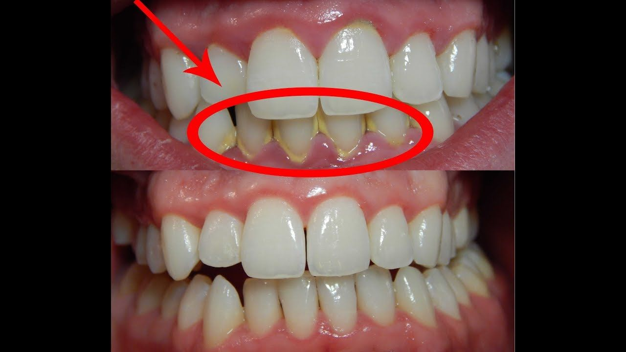 Get Rid Of Tartar and Plaque Using Only 2 Ingredients