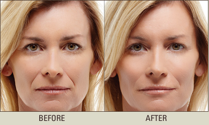 dermal fillers melbourne | Dermal Fillers Melbourne | Dermal
