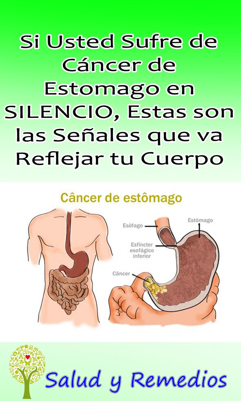 Si Usted Sufre De Cancer De Estomago En Silencio Estas Son Las Senales Que Va Reflejar Tu Cuerpo Salud Y Remedio Memes Ecards