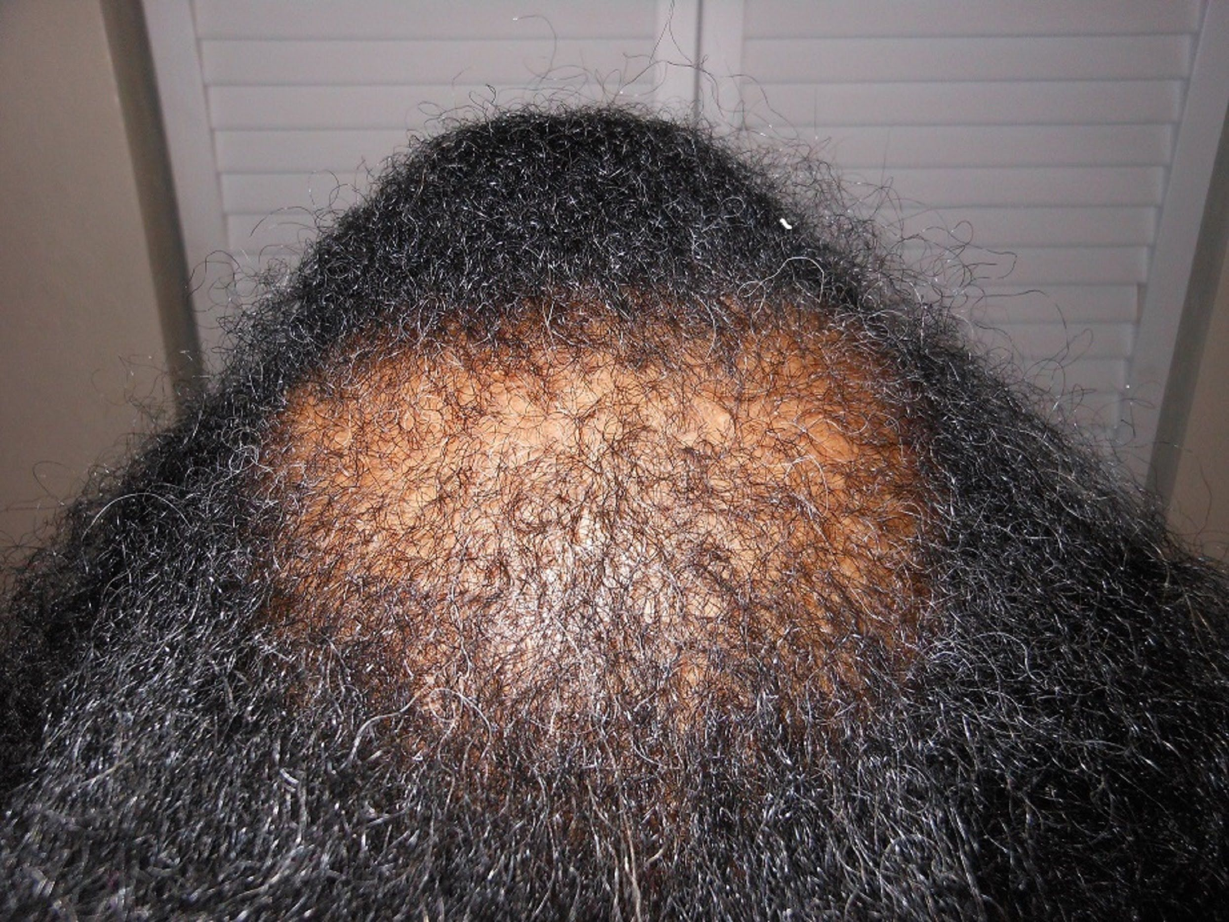 Treatment for Bald Spots and Thinning Hair