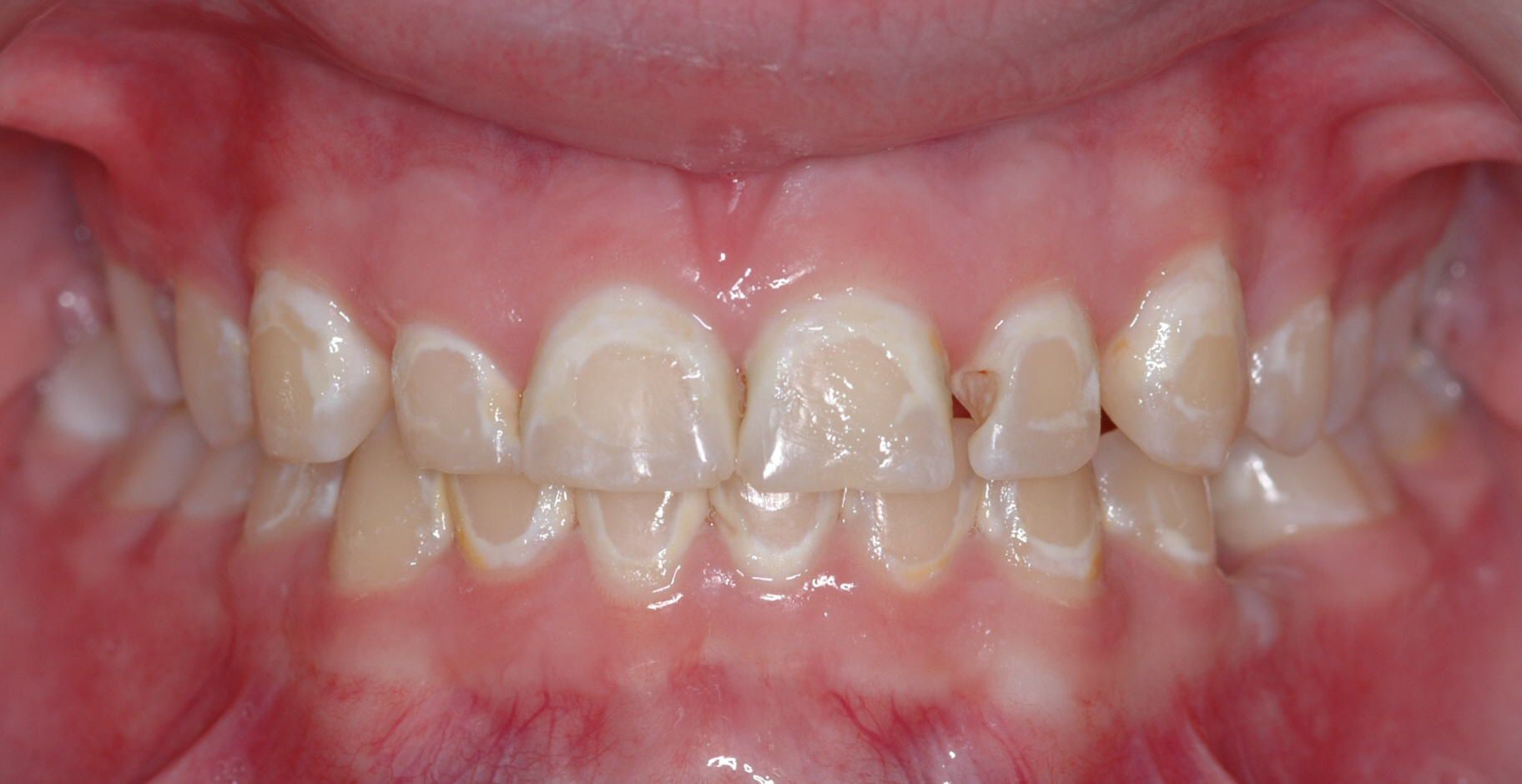 The hyper-white areas are examples of tooth decalcification or demineralization after chronic poor brushing with braces.  Further demineralization can lead to a cavity