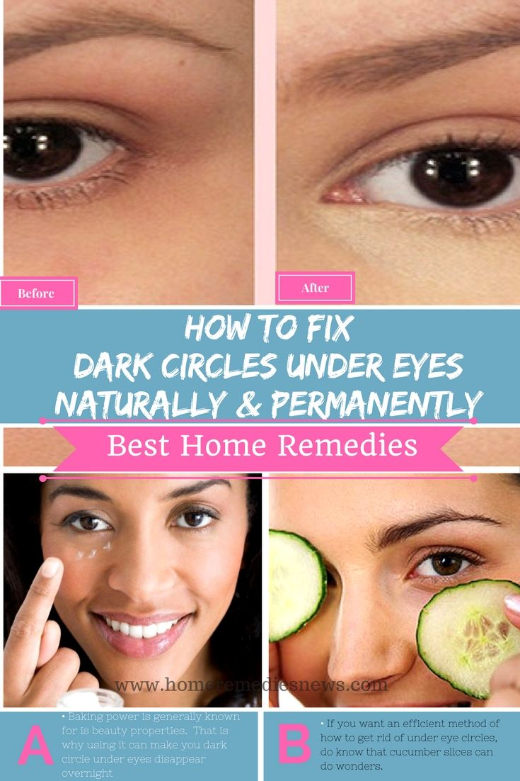 How to get rid of dark circle under eyes naturally and permanently at home with almond essential oil, baking soda, cucumber, potatoes, and tea bags …