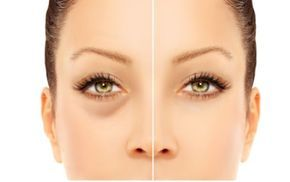 How to get rid of puffy eyes and dark circles under yes.