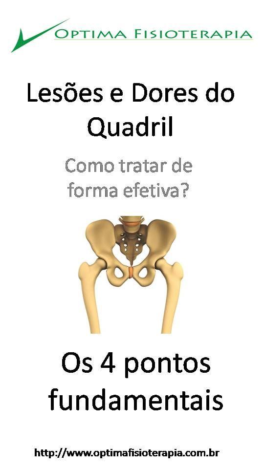 Introdução do nosso infográfico sobre lesões e dores no quadril.  #fisioterapia #quadril #dor #lesão #bursite #tendinite #artrose