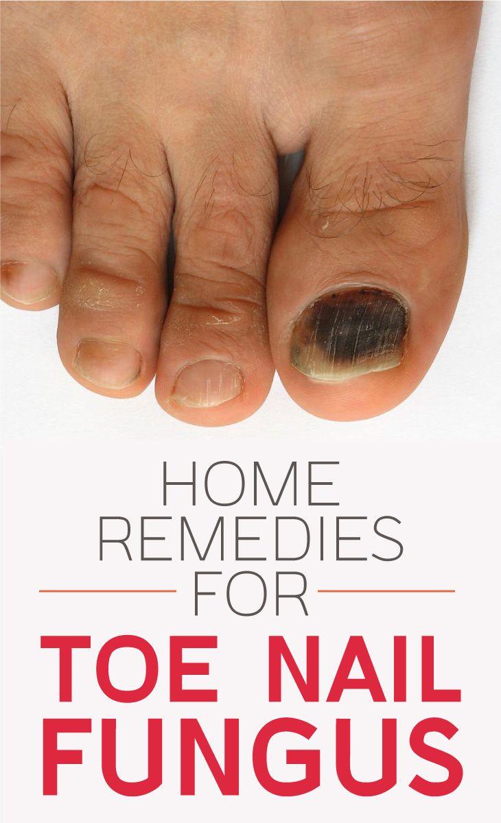 The 5 Top-Most Home Remedies For Toenail Fungus | Reminees | Toenail ...