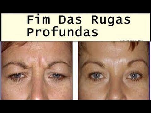 Efeito Botox Caseiro P Rosto Receita Caseira P Tirar Rugas Do