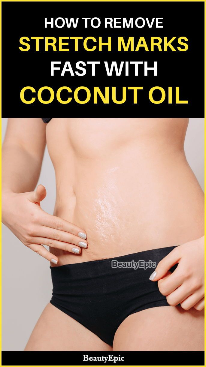 How to Remove Stretch Marks Fast with Coconut Oil  Beauty
