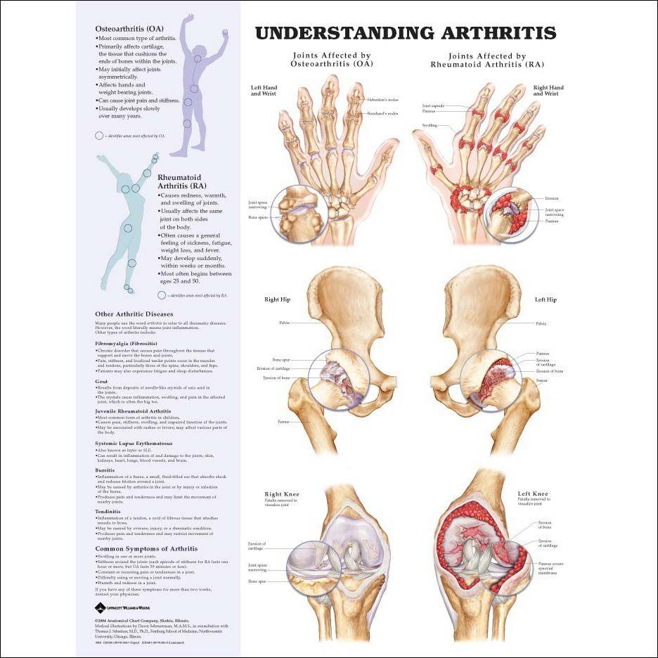 Natural Anti-inflammatory Remedies for Arthritis   Pinterest ...