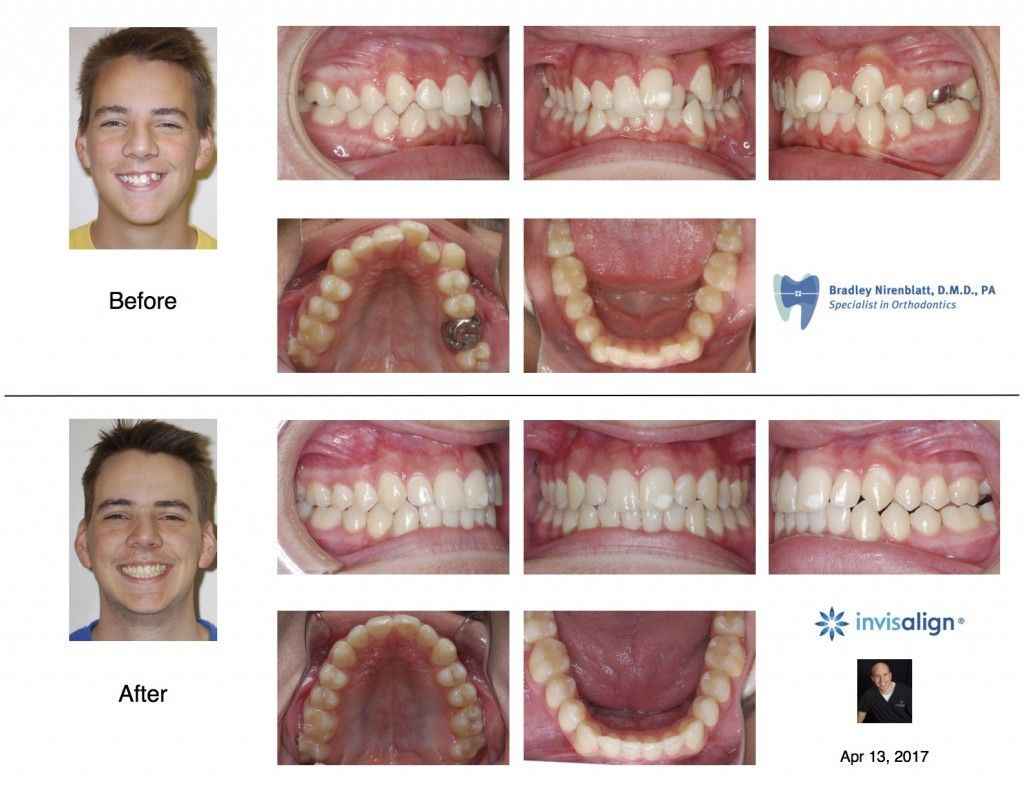 Pin Di Invisalign Before And After