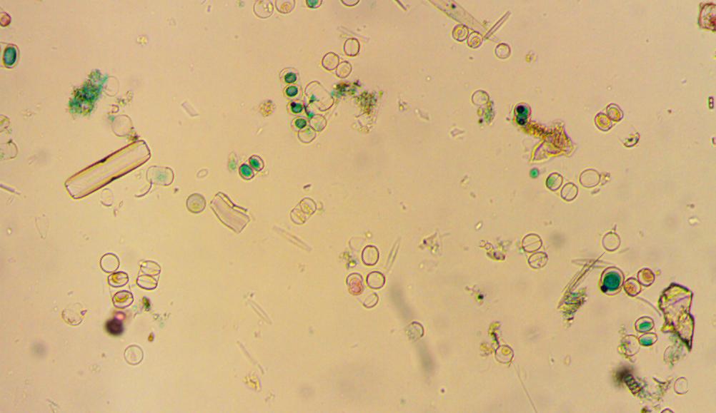 Marine Diatoms Mixed Variety @ 100x