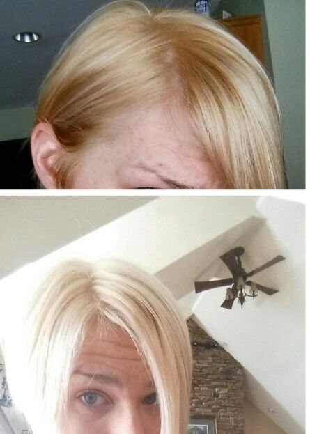 Diy Hair Toner I Used Wella T11 And T18 Mixed Together Equal Parts