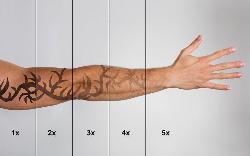 How much does laser tattoo removal cost fade to blank