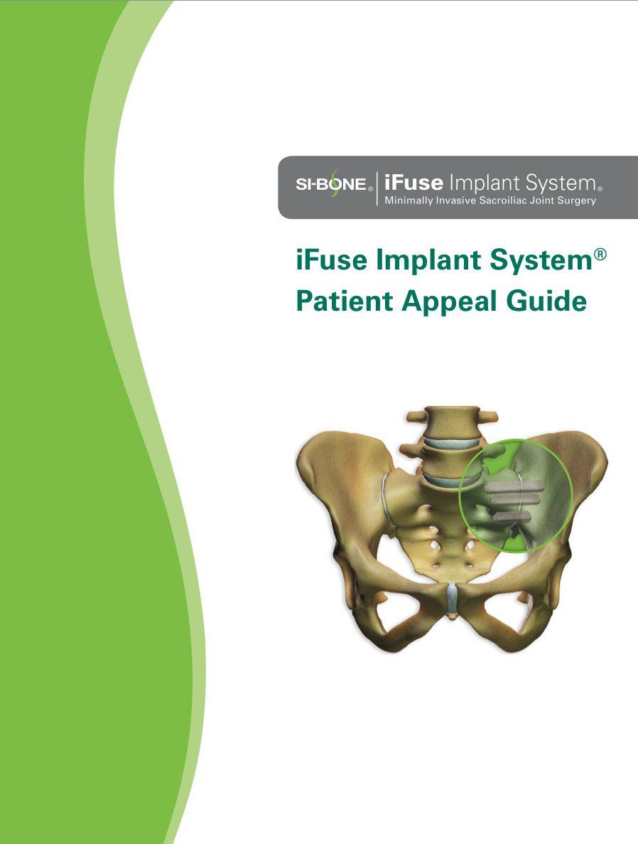 iFuse Reimbursement Information for Patients Sacroiliac