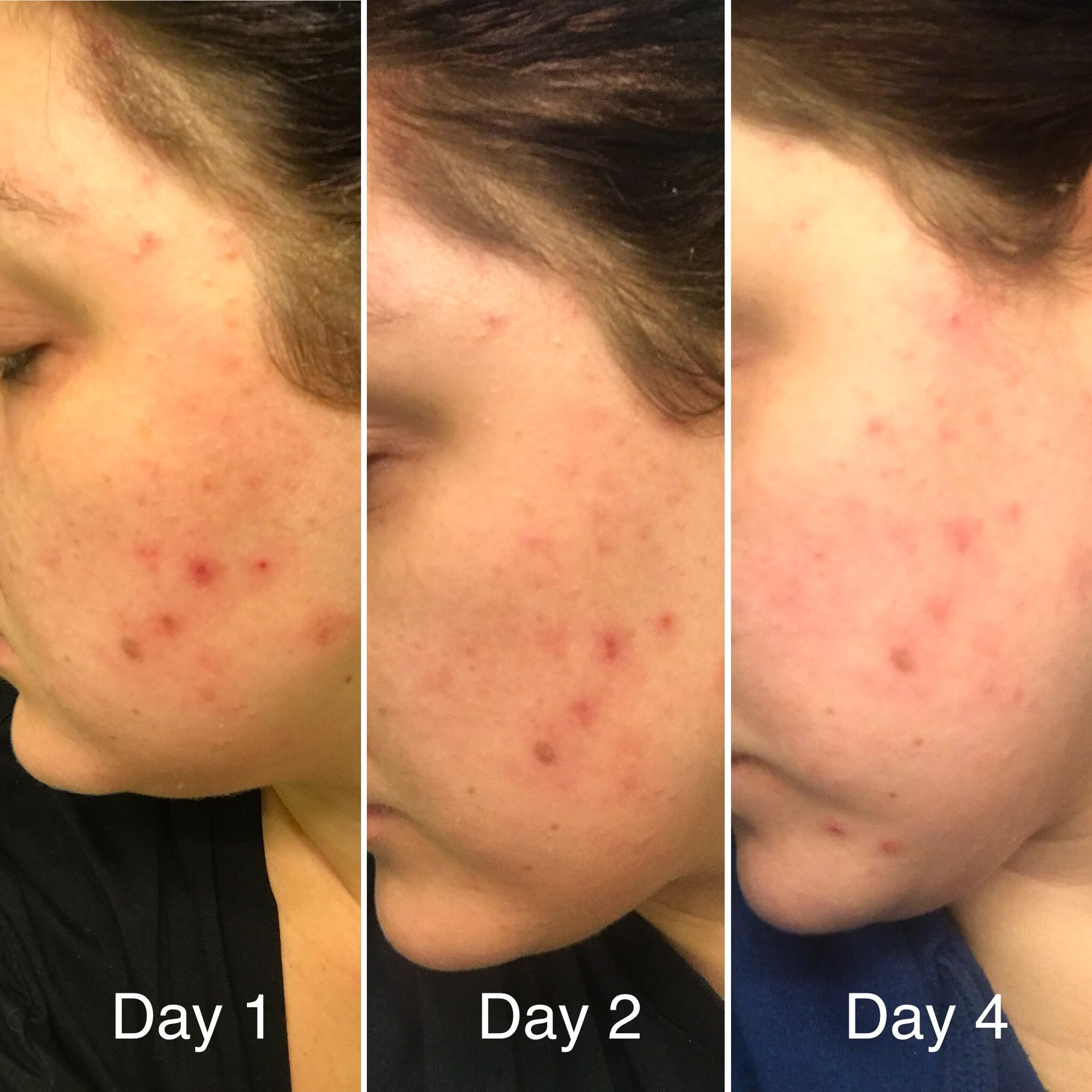 Pin On Limelife By Alcone Independent Beauty Guide Chandra Christensen