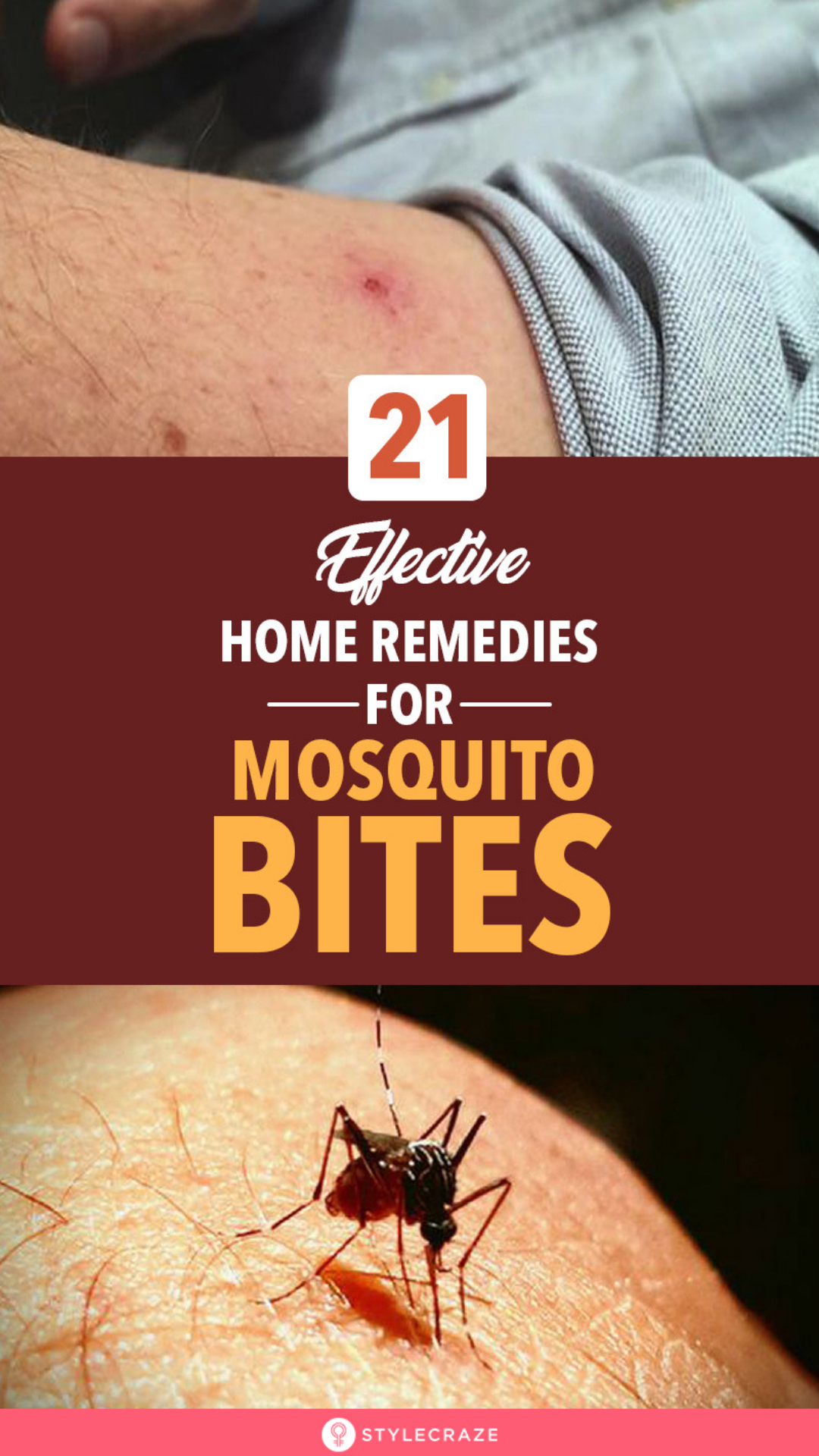 20 Effective Home Remedies To Get Rid Of Mosquito Bites With