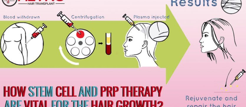 Hair transplant in india, Hair