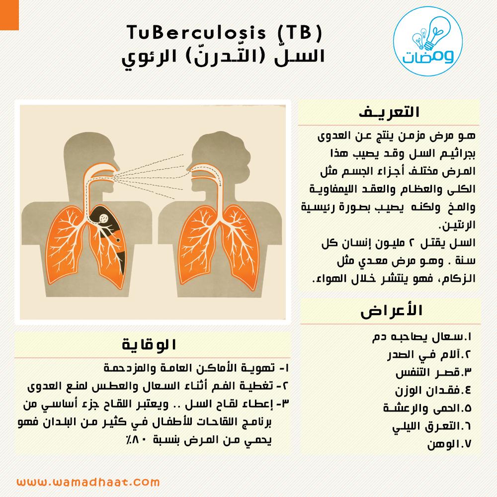 السل الرئوي مرض خطير جدا اعرف عنه اكثر مشاركة من أحد متابعينا الكرام تم التأكد من صحة المعلومات عن طريق Www Mayoclinic Org Www Info Health