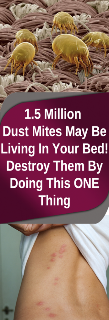 1.5 Million Dust Mites May Be Living In Your Bed! Destroy