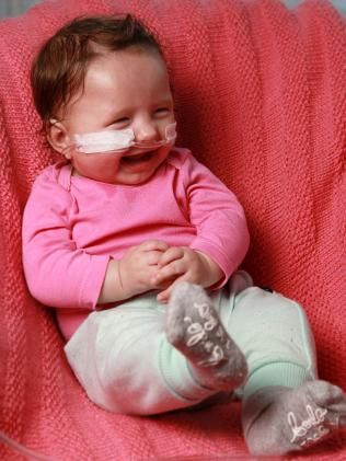 Oculo Dento Digital Syndrome: Whyalla baby Amelia Hampton's rare diagnosis | PerthNow