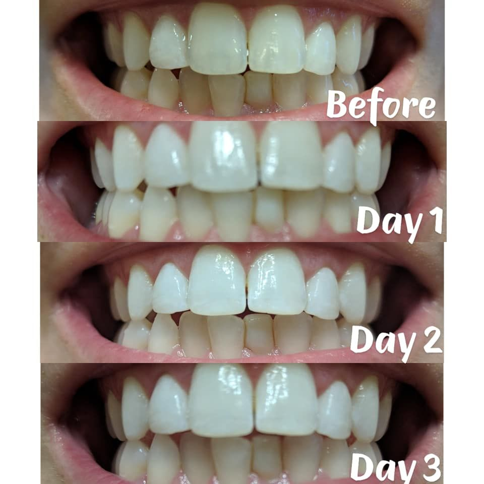 Pin On Teeth Whitening Ideas