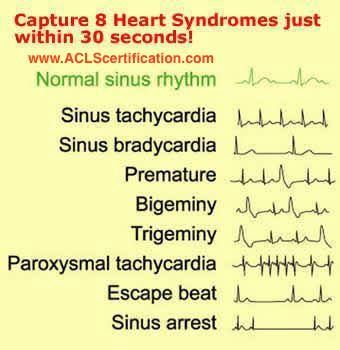 Capture 8 Heart Syndromes just within 30 secs!