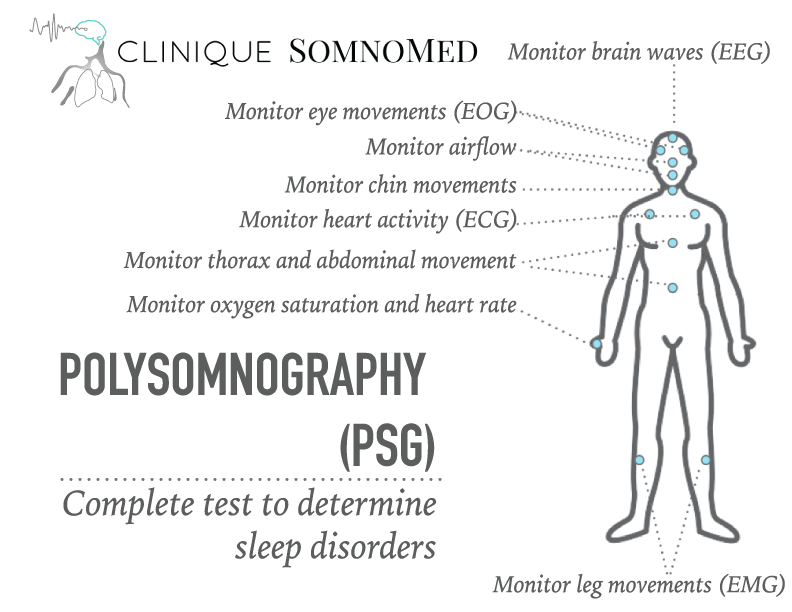 Clinique Somnomed PSG