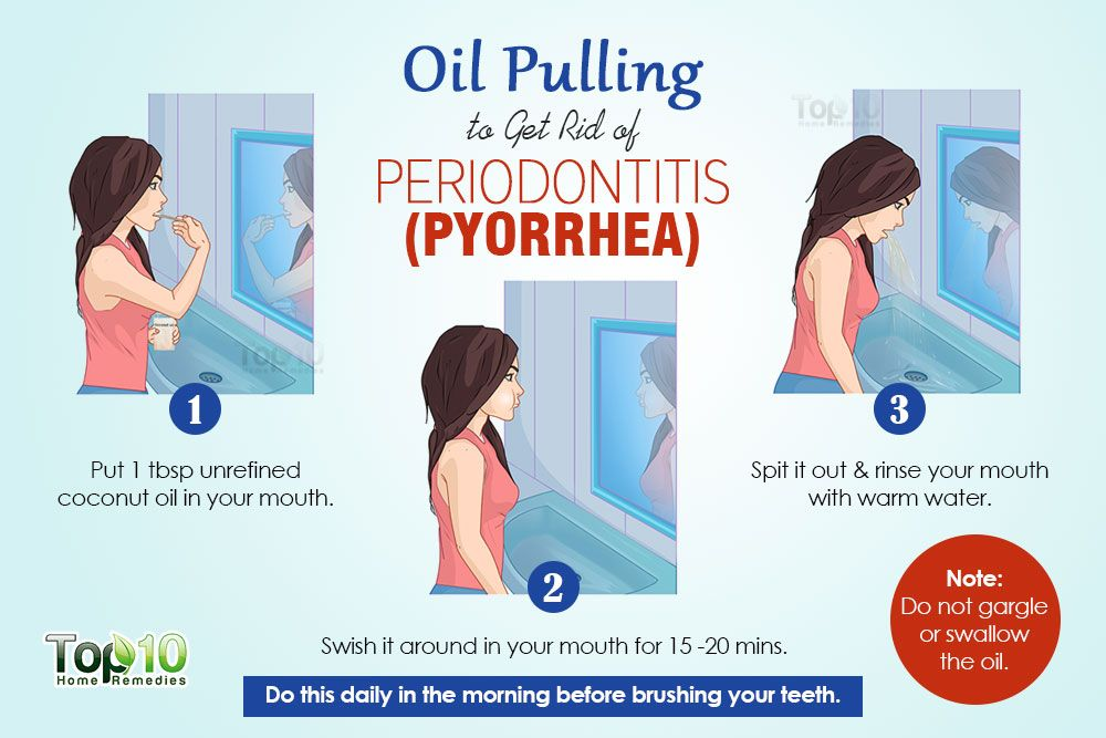 Home remedies for periodontitis pyorrhea periodontitis