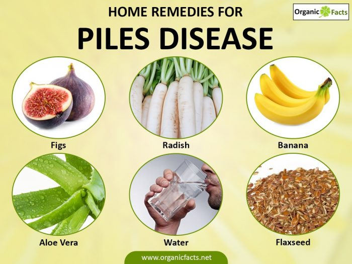 28 Remedies Treatments For Hemorrhoids Or Piles In 2020 Piles