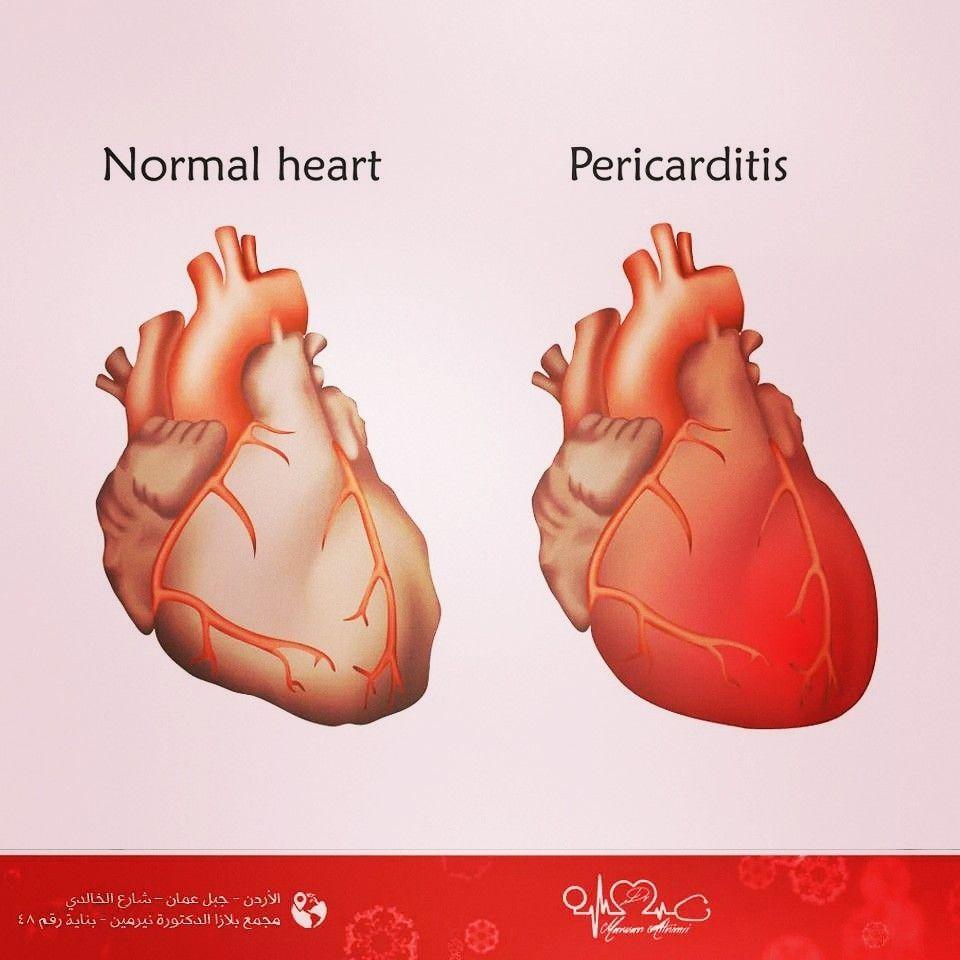 التهاب الغشاء التاموري Pericarditis Normal Heart Cardio Clinic