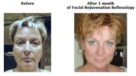 eve fraser facial exercises