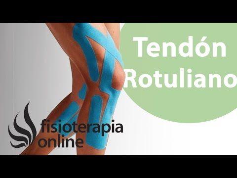 Kinesiostaping En La Tendinopatía Rotuliana Tendinitis Rotuliana Vendaje Neuromuscular Ejercicios Para Rodillas