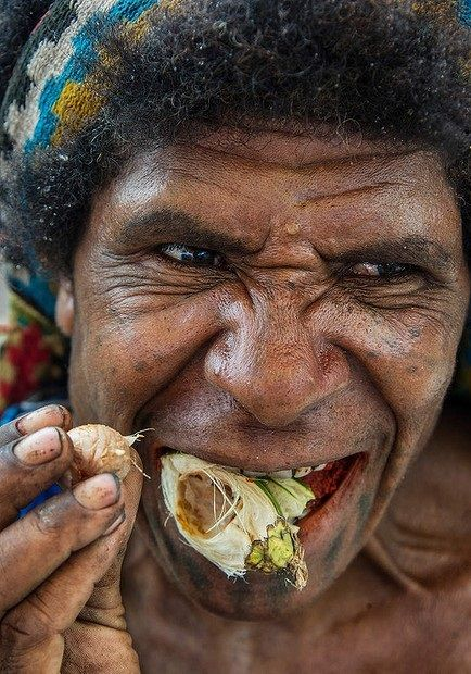 Dentaltown - Diagnosis? The effects of betel nut on the