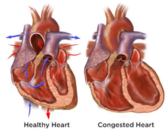 congestive cardiac failure signs symptoms and treatment Early chf congestive cardiac failure symptoms with honey  this is another major factor why people should use for specialized treatment  signs symptoms of chf.