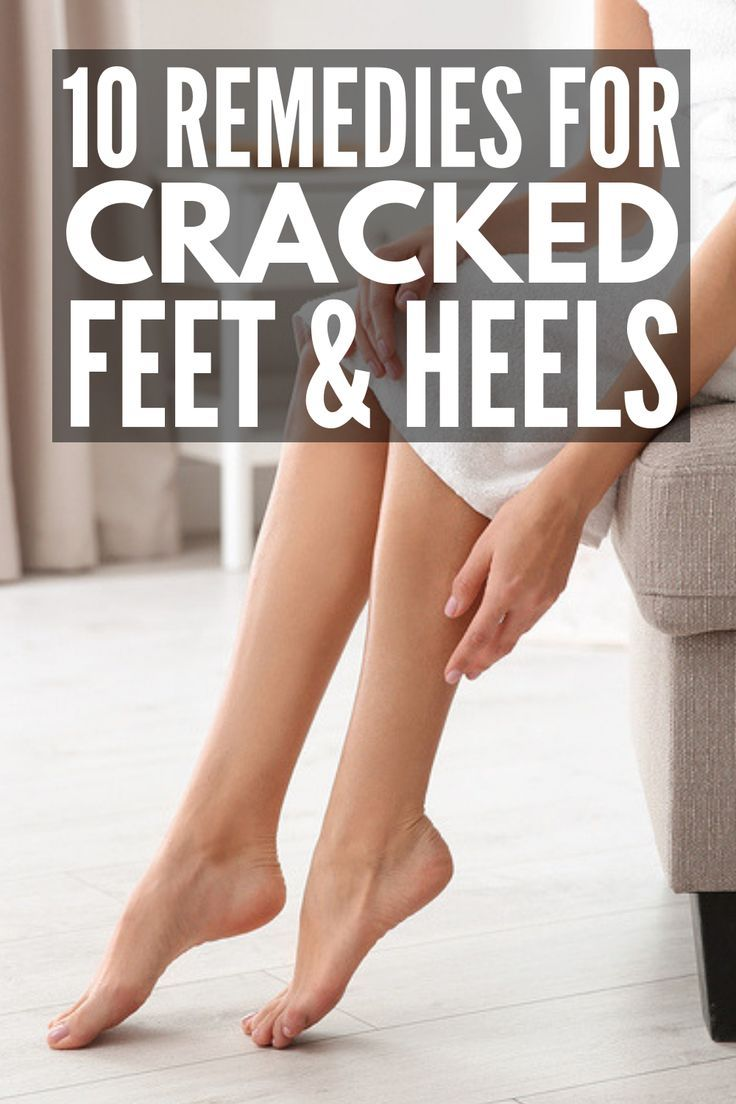 6 Home Remedies for Cracked Heels That Actually Work