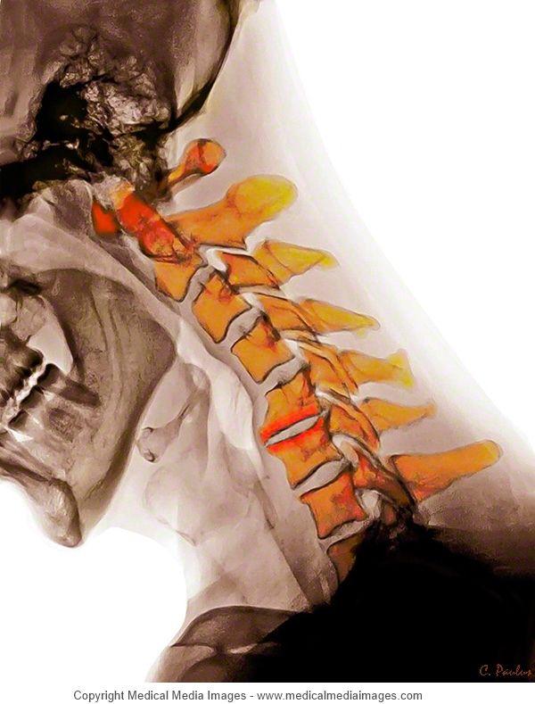 Pin de Medical Media Images en Color MRI and X-Rays of Degenerative ...