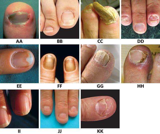 Know Your Onychos: A Nail Disease Quiz | Nail Health | Nail