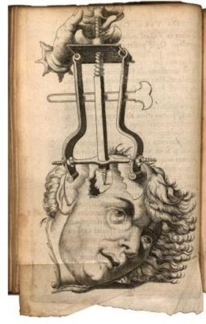 Trepanation Or Trepanning Is A Procedure Where Sharp Instruments Were Used To Bore Holes Through The Skull It Is T Vintage Medical Medical History