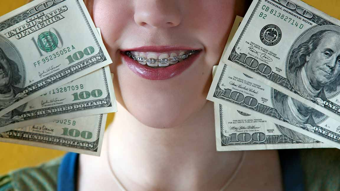 how much does it cost to get your teeth whitened with insurance