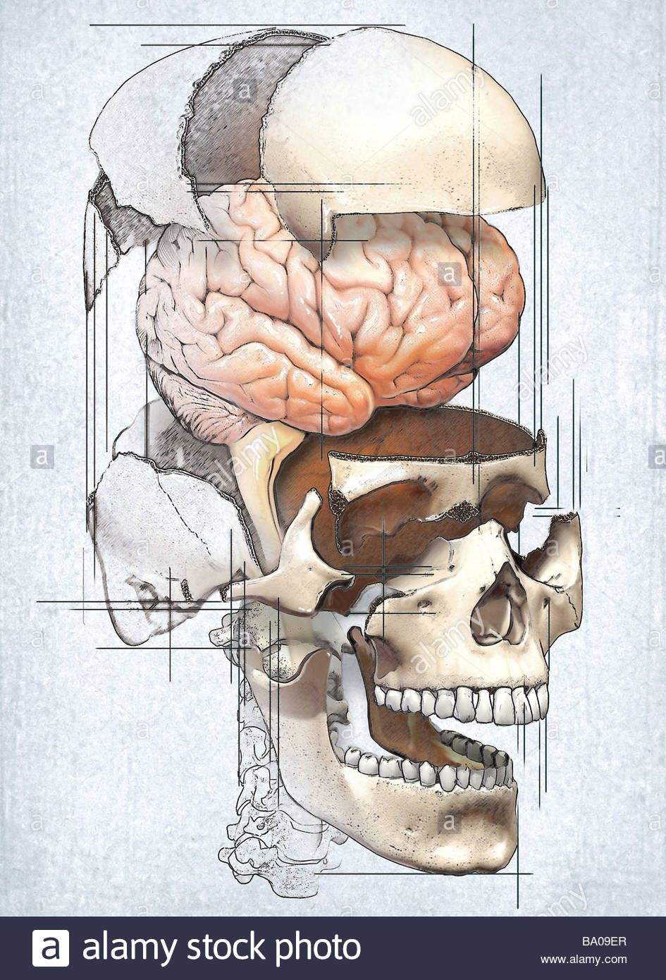 this-medical-image-depicts-an-exploded-view-of-the-skull-with-the ...