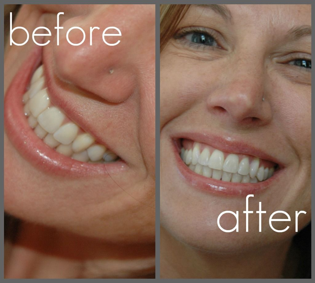 Crest 3d White 2 Hour Express Whitestrips Before And After And