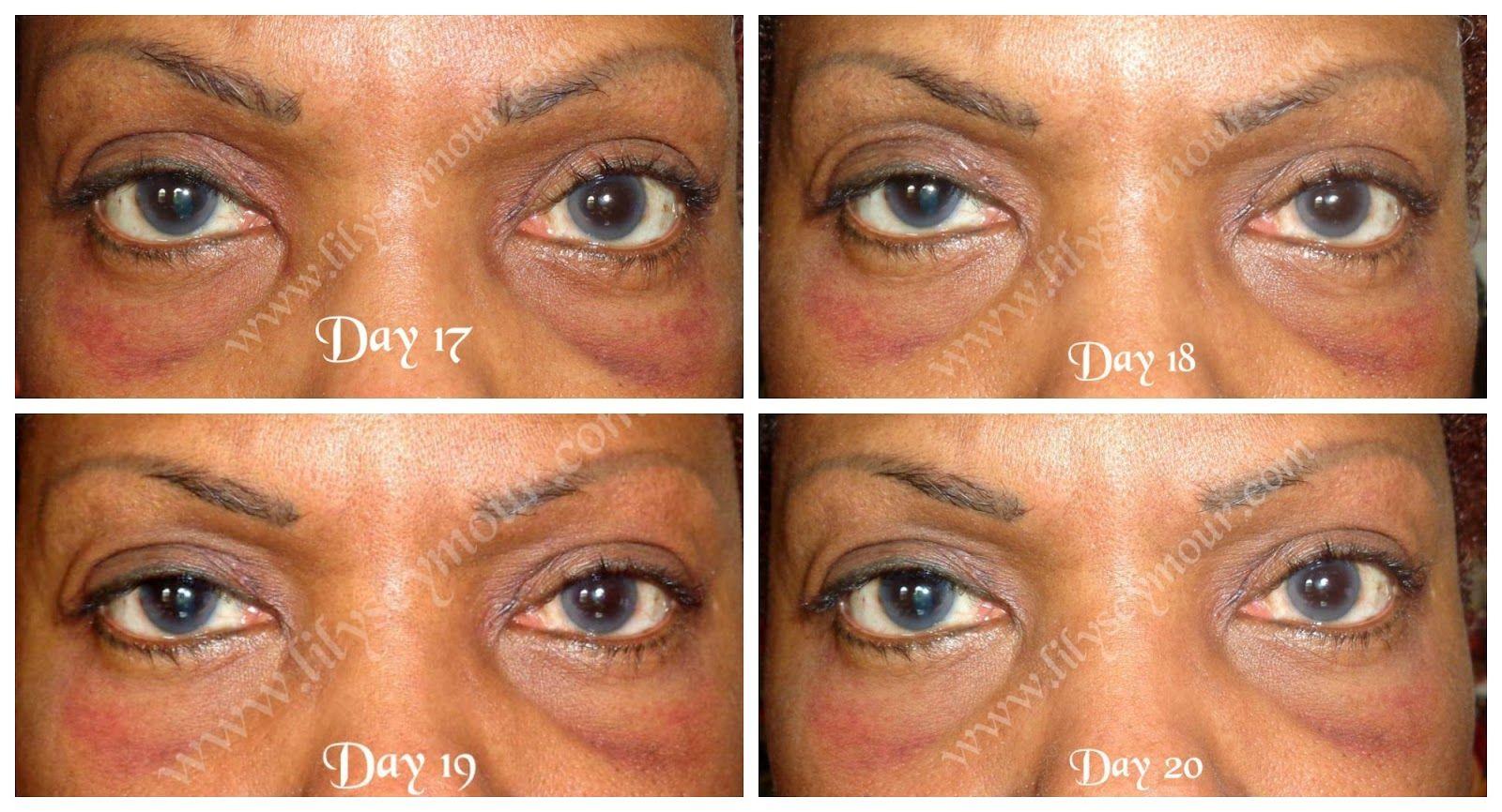 Pin On Facial Cosmetic Surgery