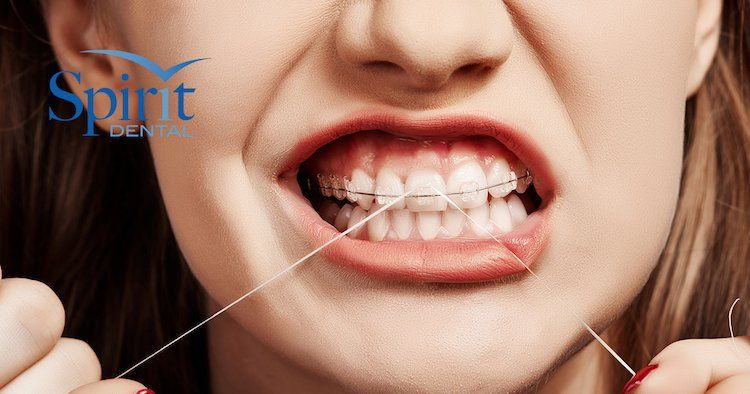 Overbites Protect Your Kids Smile! Flossing, Dental