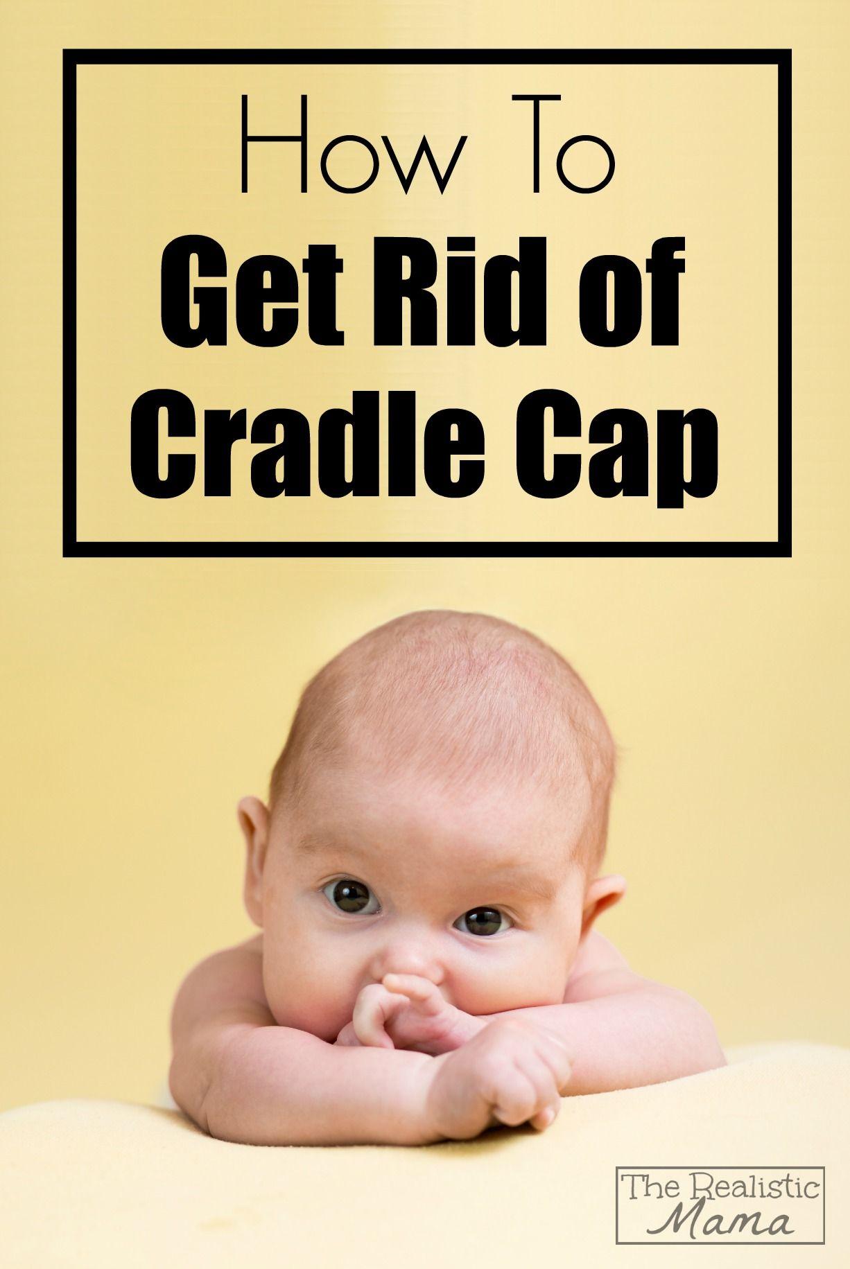 bc284d4978b How to Get Rid of Cradle Cap! So Simple!