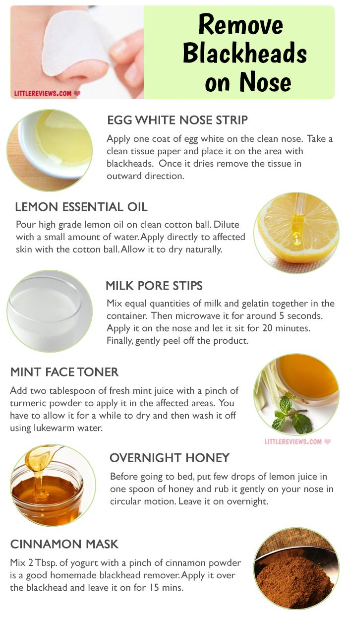 How To Get Rid Of Blackheads On Your Nose Naturally