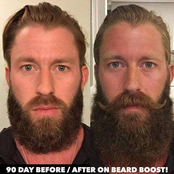 how to grow a better beard