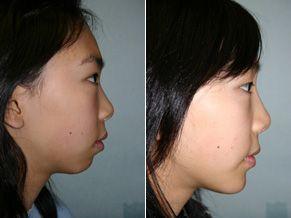 Asian nose bridge surgery