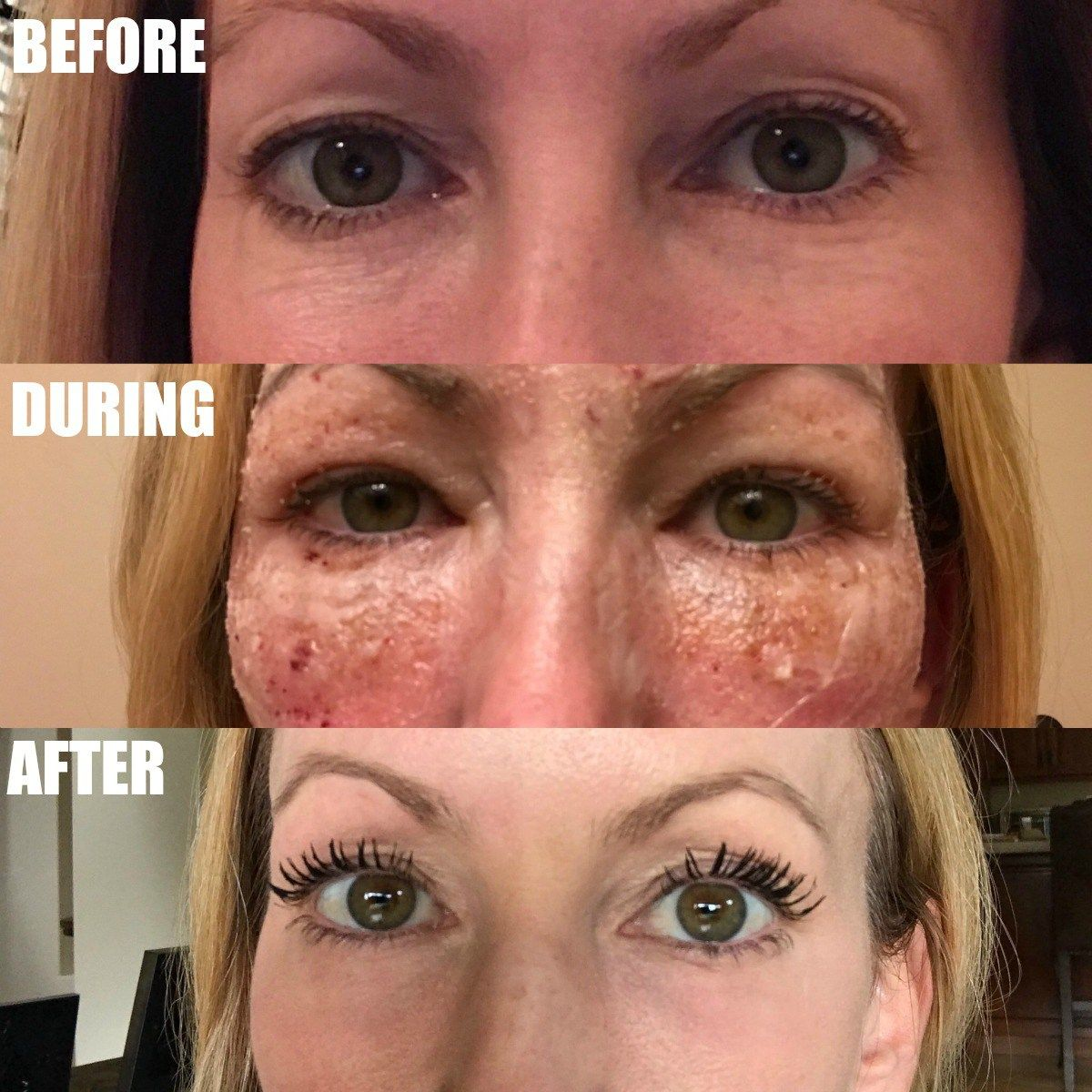 I Had The Co2 Laser Treatment On My Eyes Read All About My Experience On The Blog Co2laser B Laser Skin Treatment Laser Treatment Face Laser Face Treatment