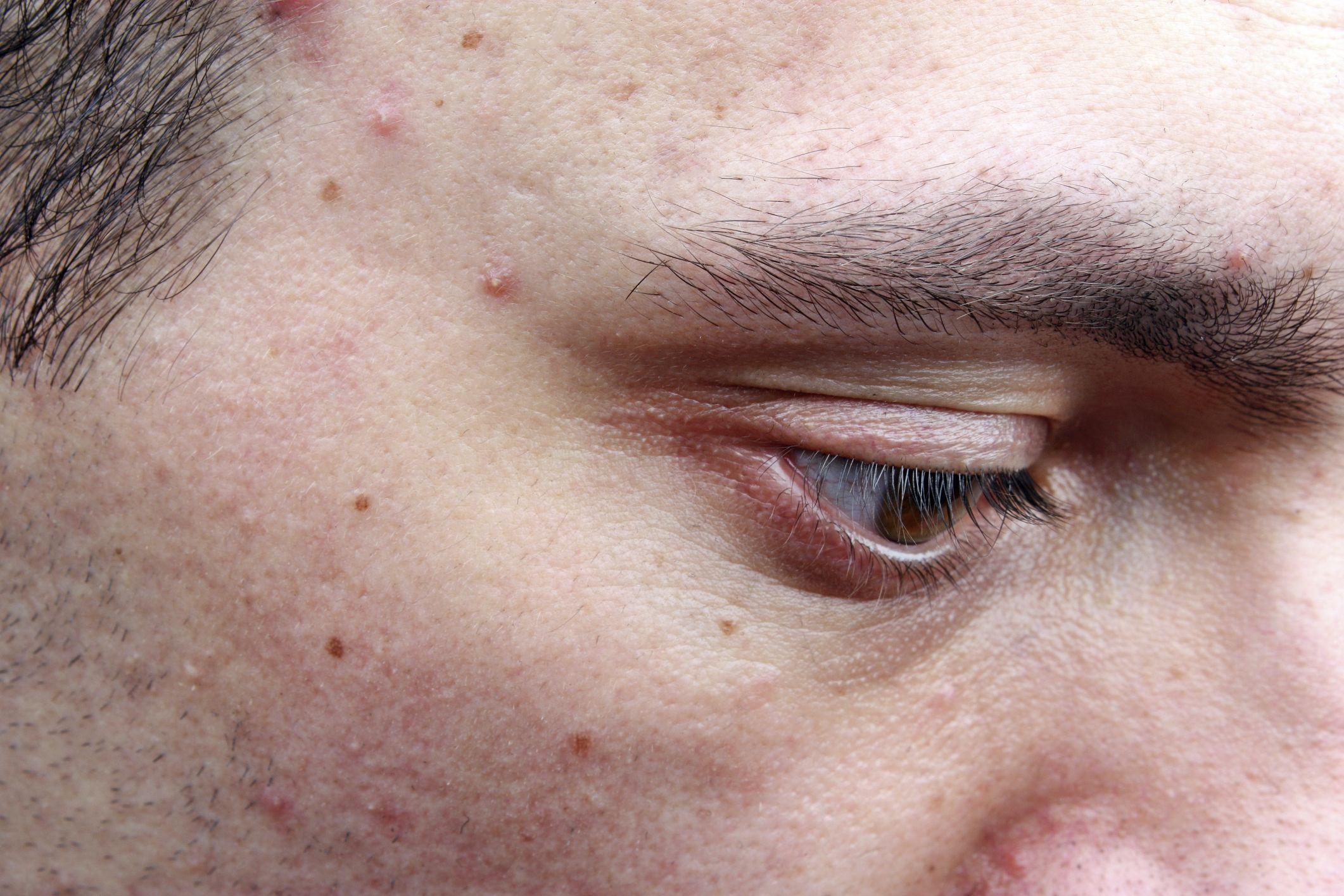 Facial skin blisters foto 712